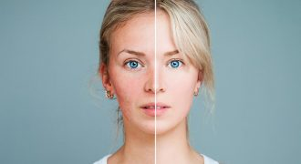 acne treatment before and after | skin treatments