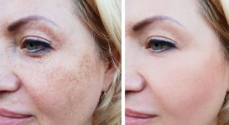 pigmentation treatment before and after of woman | skin pigmentation
