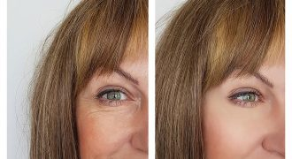 derma fillers before and after of woman | cosmetic injections